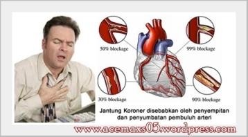 Obat tradisional jantung kroroner