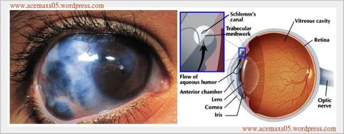 obat tradisional glaukoma