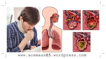 Obat tradisional paru paru basah