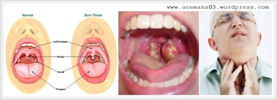 Obat tradisional radang tenggorokan
