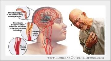 obat tradisional stroke