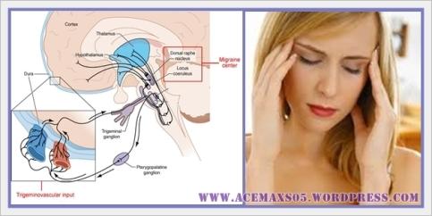Obat Tradisional Migren